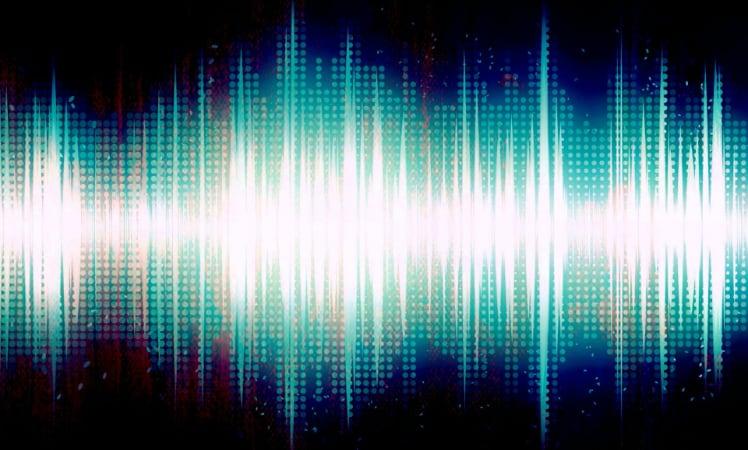 X-Ray: Neues Feature für Amazon Music – iTopnews.de – Aktuelle Apple-News & Rabatte zu iPhone, iPad & Mac